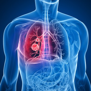 How Bias Makes Lung Cancer Deadlier