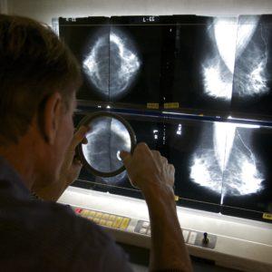 Will Regulators Impede Biden's Cancer Moonshot Mission?